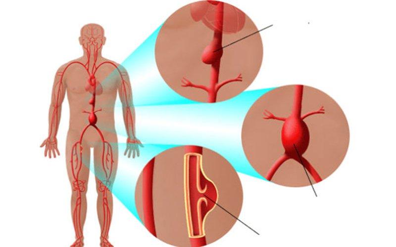 Chẩn đoán và điều trị phình tắc động mạch chủ bụng