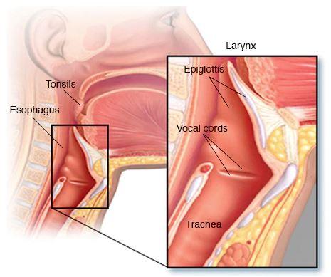 Ung thư vòm mũi họng