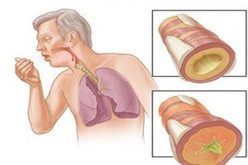 Điều trị bệnh lao