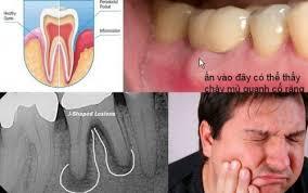 Các bệnh vùng quanh răng thường gặp